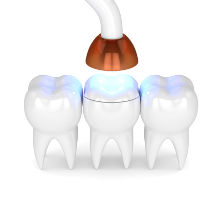 3d render of teeth with dental polymerization lamp and light cured onlay filling over white background