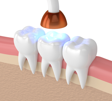 3d render of teeth with dental polymerization lamp and light cured onlay filling over white background Standard-Bild - 117093311
