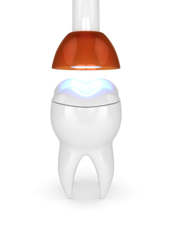 3d render of tooth with dental polymerization lamp and light cured onlay filling over white background Stok Fotoğraf