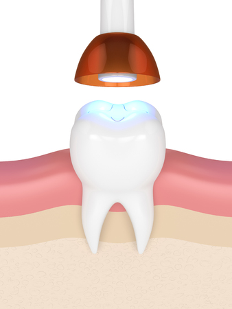 3d render of tooth with dental polymerization lamp and light cured inlay filling over white background