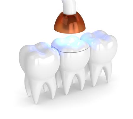 3D-Darstellung von Zähnen mit zahnärztlicher Polymerisationslampe und lichtgehärteter Onlay-Füllung auf weißem Hintergrund