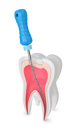 3d render of tooth with endodontic file over white background. Root canal treatment concept. Stockfoto - 119398812