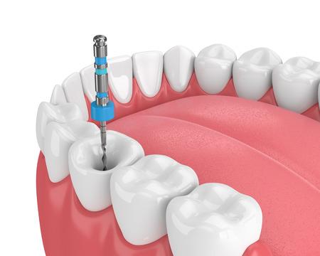 Render 3D de diente con lima endodóntica en mandíbula sobre fondo blanco. Concepto de tratamiento de conducto.