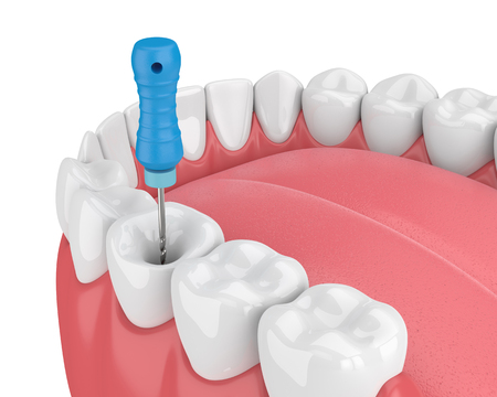 3d render of tooth with endodontic file  in jaw over white background. Root canal treatment concept. Stock Photo