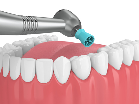 3d render of jaw with dental handpiece and  polishing prophy cup. Dental polishing concept. Stock Photo