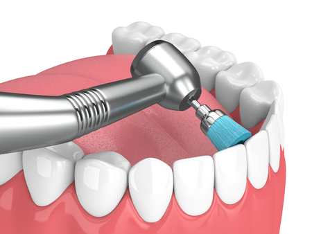 3d render of jaw with dental handpiece and polishing brush. Dental polishing concept.