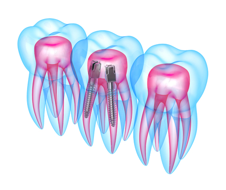 3d render of x-ray teeth with stainless steel dental post over white background. Endodontic treatment concept