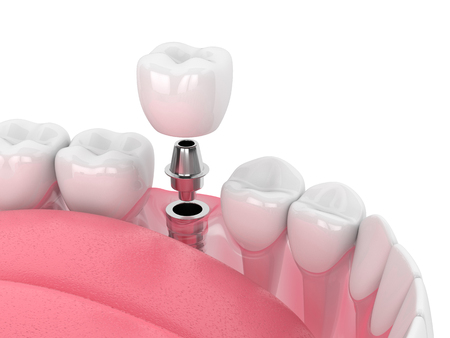 3d render of jaw with dental implant isolated over white background Stock Photo