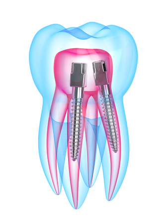 3d render of x-ray tooth with stainless steel dental post over white background. Endodontic treatment concept