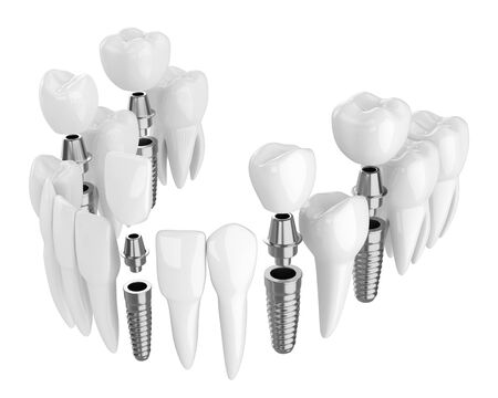 3d render of toothing with dental implants isolated over white background Stok Fotoğraf - 125537062