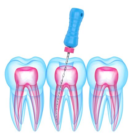 3d render of teeth with endodontic file over white background. Root canal treatment concept.