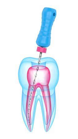 3d render of tooth with endodontic file over white background. Root canal treatment concept.