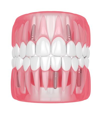 3d render of jaw with dental implants isolated over white background Stock Photo