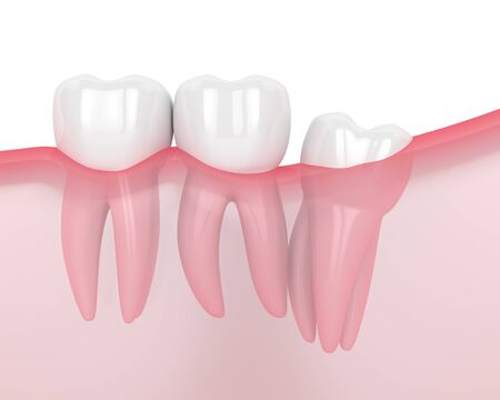 3d render of jaw with wisdom distal impaction over white background. Concept of different types of wisdom teeth problems. Stock Photo