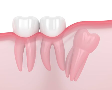 3d render of jaw with wisdom distal impaction over white background. Concept of different types of wisdom teeth problems. Standard-Bild