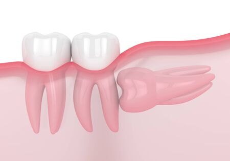 3d render of jaw with wisdom horizontal impaction over white background. Concept of different types of wisdom teeth problems.