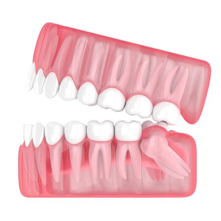3d render of jaw with wisdom mesial impaction over white background. Concept of different types of wisdom teeth problems.