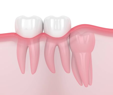 3d render of jaw with wisdom vertical impaction over white background. Concept of different types of wisdom teeth problems. Archivio Fotografico - 127492186
