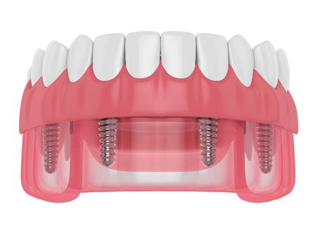 3d render of implant partial denture isolated over white background