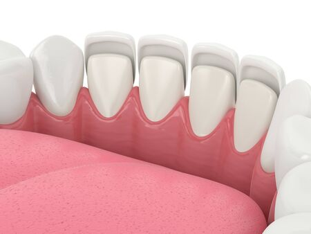 3d render of teeth with veneers over white
