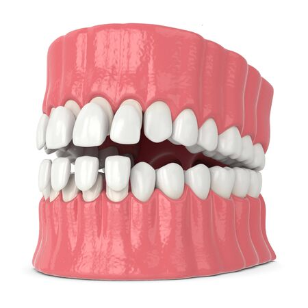 3d render of jaw with upper and lower veneers over white background