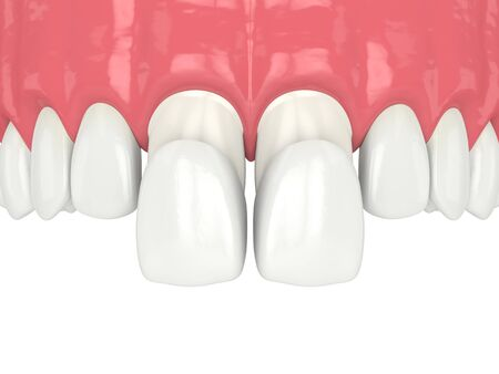 3d render of upper jaw with veneers over white