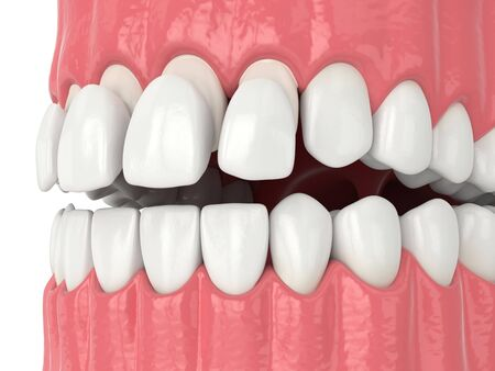3d render of jaw with teethand upper veneers over white
