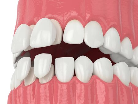 3d render of jaw with upper and lower veneers over white