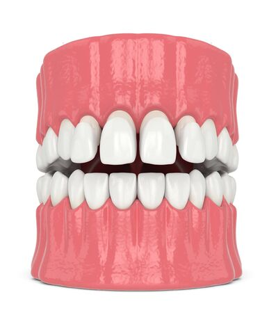 3d render of jaw with upper veneers over white
