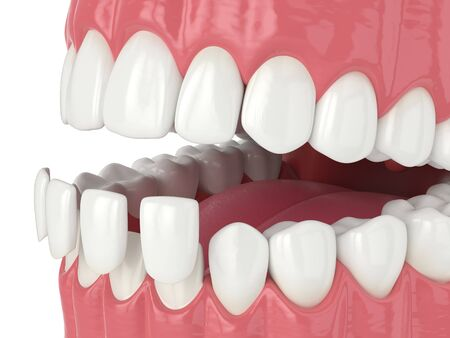 3d render of jaw with lower veneers over white