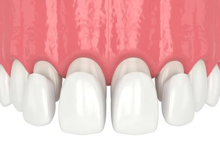 3d render of upper jaw with four veneers over white Stockfoto