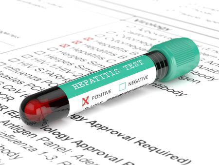 3d render of  blood samples with hepatitis test lying on lab form Stock Photo
