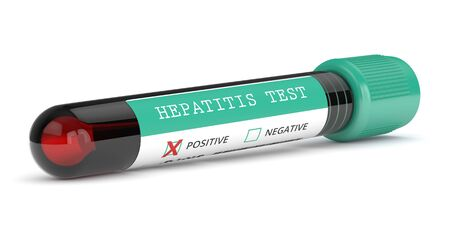 3d render of  blood samples with hepatitis test over white background