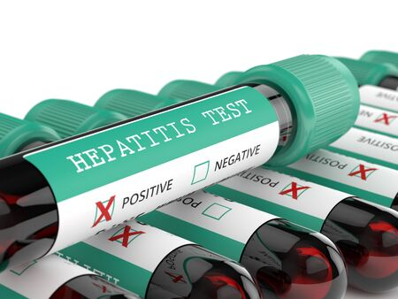 3d render of  blood samples with hepatitis test in row Stock Photo