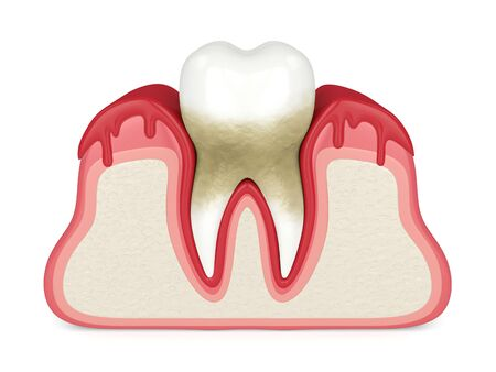 3d render of tooth in bleeding gums over white background. Periodontal disease concept.
