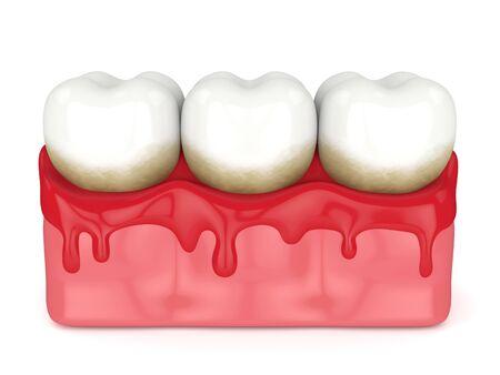 3D-Darstellung von Zähnen in Zahnfleischbluten auf weißem Hintergrund. Konzept der Parodontitis.