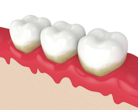 3d render of teeth in bleeding gums over white background. Periodontal disease concept.