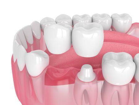 3D Render de la mandíbula con puente voladizo dental sobre fondo blanco.