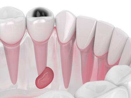 Rendering 3D della mascella con cavità del dente e cisti. Concetto di problema dentale.