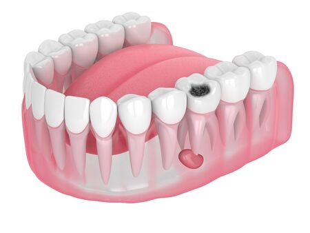 3d render of jaw with tooth cavity and cyst. Dental problem concept.