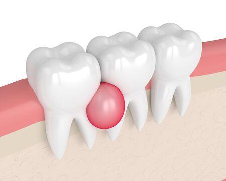 3D-Darstellung von Zähnen im Zahnfleisch mit Zyste auf weißem Hintergrund. Zahnmedizinisches Problemkonzept. Standard-Bild