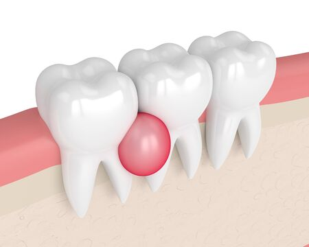 3d render of teeth in gums with cyst over white background. Dental problem concept.