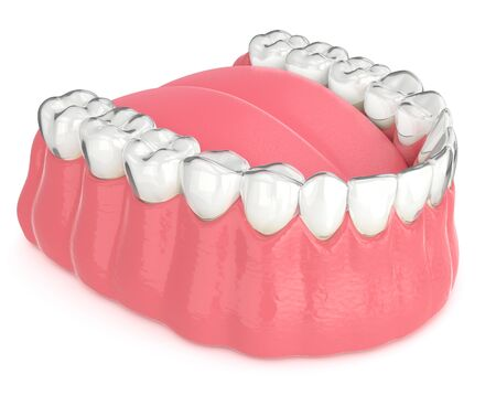 3d render of invisalign removable and invisible retainer with lower jaw over white background