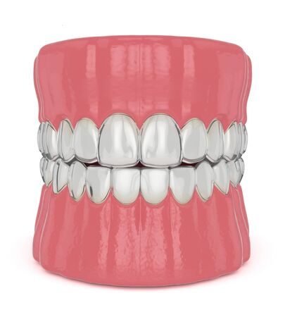 3d render of invisalign removable and invisible retainers on jaw over white background Stock Photo
