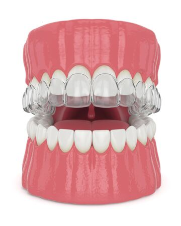 3d render of jaw with invisalign removable retainer over white background