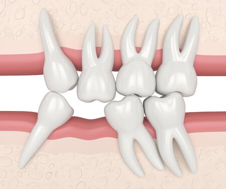 3d render of teeth sliding towards the area of missing tooth in order to fill the gap. Consequences of lower tooth loss.