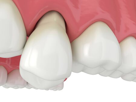 3d render of jaw with tooth protruding from the gums