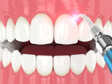 3d render of dental diode laser used to treat gums. The concept of using laser therapy in the treatment of gums Zdjęcie Seryjne