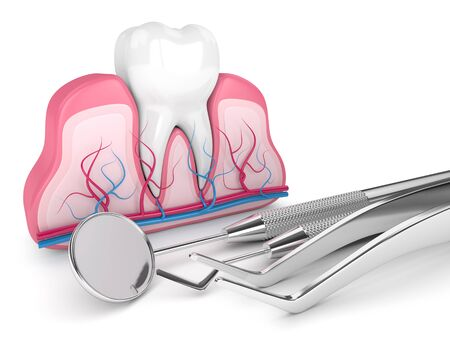 3d render of tooth in gums and dental diagnostic instruments over white background Archivio Fotografico