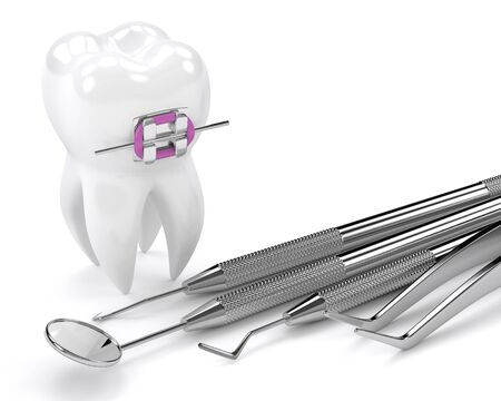 3d render of tooth with braces and dental diagnostic instruments  over white background